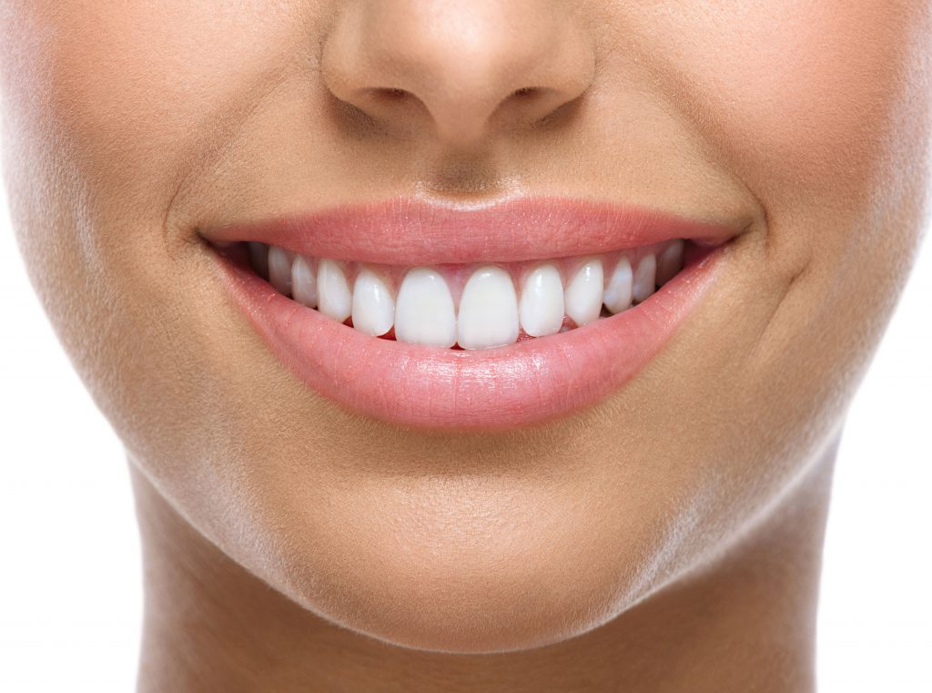 Fixing your Smile: Should You Go DIY When it Comes to Teeth Whitening?
