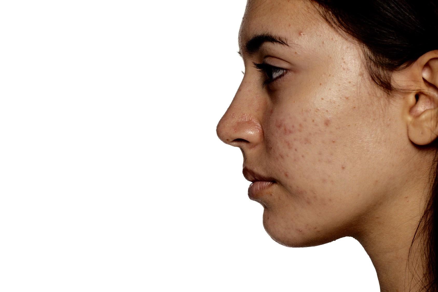 "A Basic Guide to ""Maskne"" and Other Acne Types"